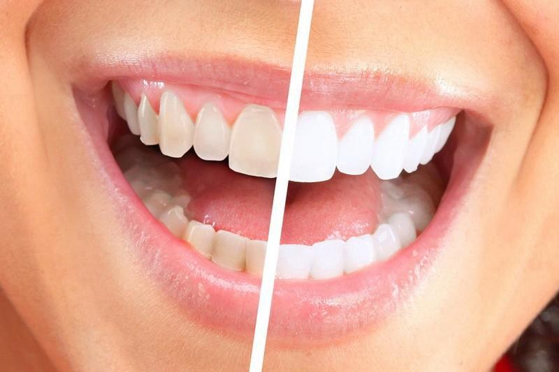 Лазерное отбеливание зубов в Харькове - клиника White&White